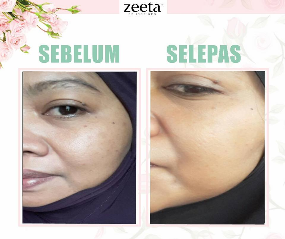 testimoni-rose-face-serum-zeeta